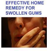 Natural Remedy for Swollen Gums